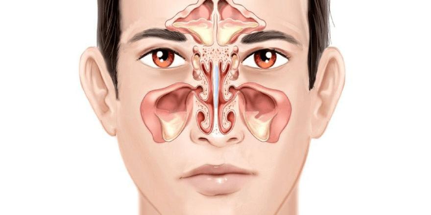 Viêm xoang là gì? Triệu chứng nhận biết viêm xoang