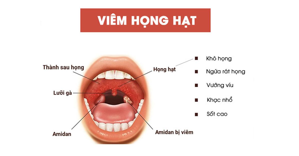 160658 trieu chung viem hong hat